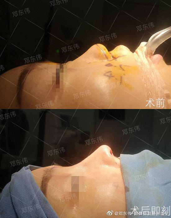 邓东伟鼻子案例