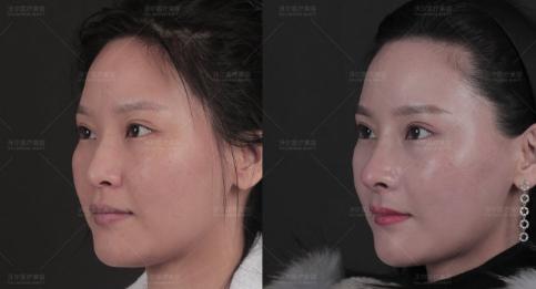 北京隆鼻做得好的医生是哪个?北京隆鼻专家预约前五名