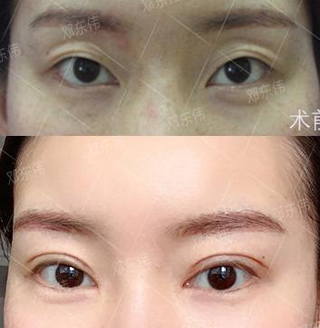 2020年最新成都双眼皮修复医生预约排行榜