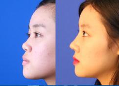 杭州鼻综合推荐的医生哪个好?杭州鼻综合专家排名