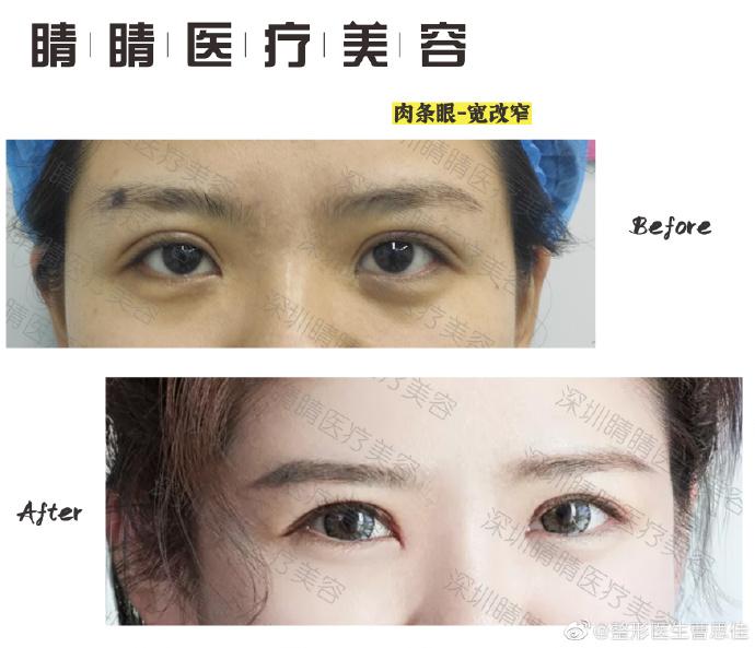 曹思佳双眼皮修复案例
