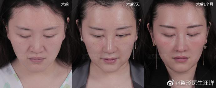 汪垟鼻综合案例