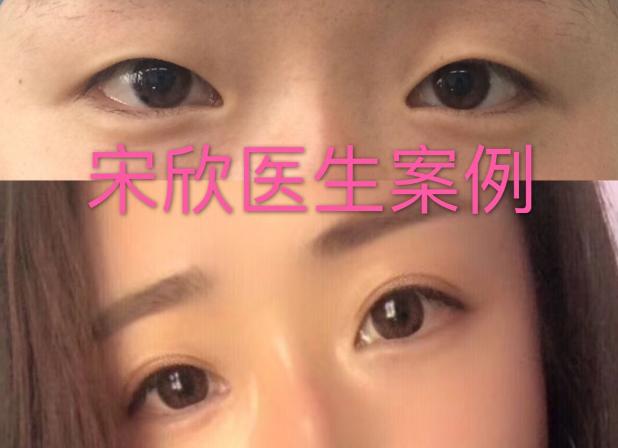 宋欣做双眼皮案例