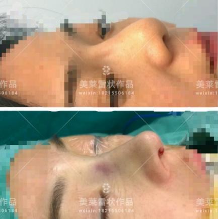 雷状鼻修复案例