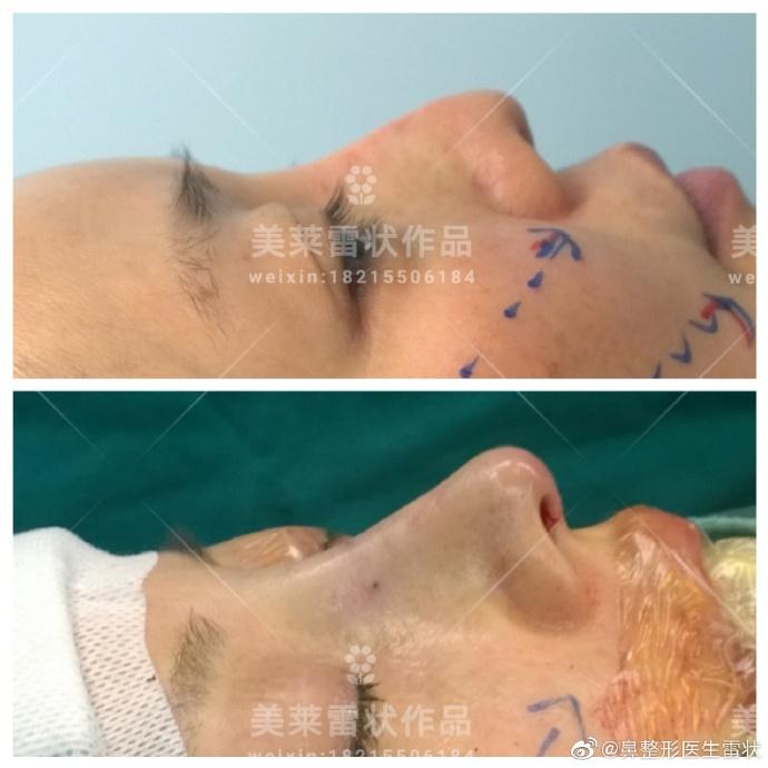 雷状鼻综合案例