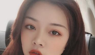 山西省眼科任晓霞割的双眼皮怎样?任晓霞简介案例技术好吗?