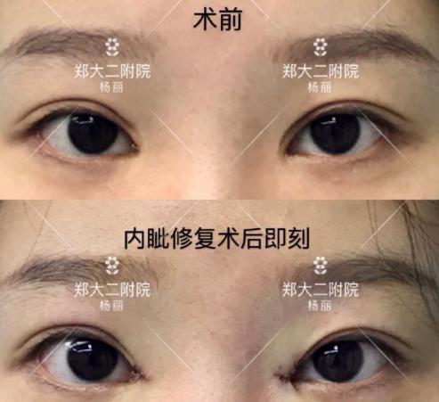 郑州双眼皮修复哪个医生比较好?郑州双眼皮修复医生排名