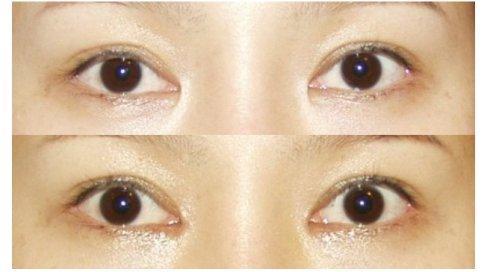 杜园园眼角修复案例