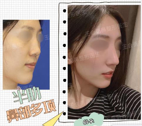 2020年上海做鼻子厉害的专家排名 上海隆鼻医生预约排名