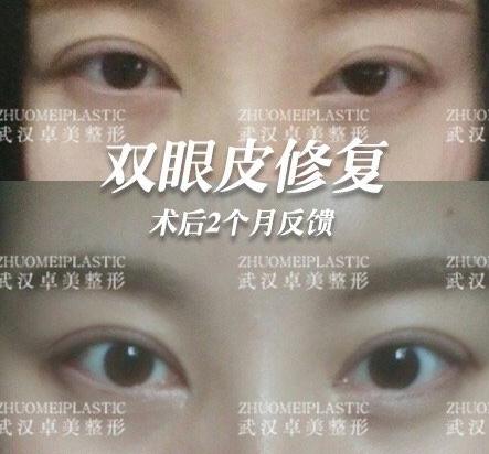 武汉双眼皮修复哪里做的比较好?武汉眼修复医生有哪些?