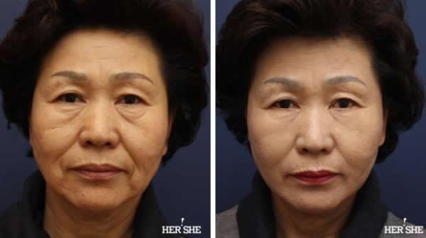 上海九院面部提升哪个医生好?上海九院面部提升技术好的专家排名