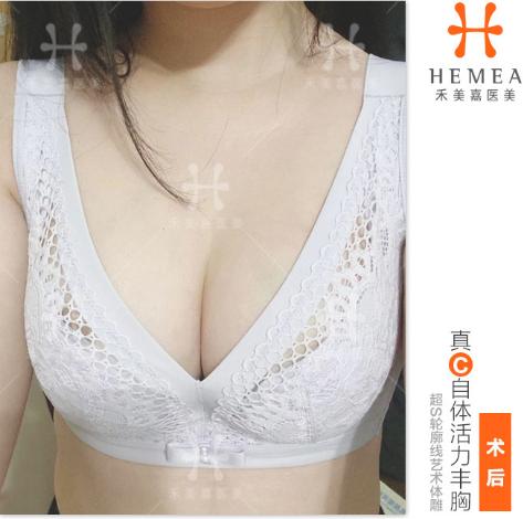 北京任学会和王自谦谁技术好?脂肪填充案例对比预约