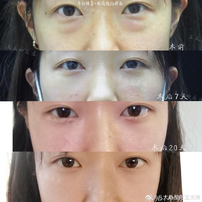 王太玲祛眼袋案例