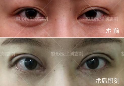 刘志刚眼部修复案例