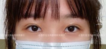 北京最好的整形医院双眼皮医生有哪些?