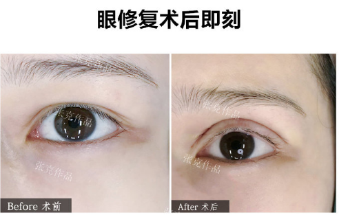 张克双眼皮修复案例