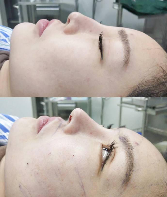 中国鼻部整形专家排名前十 中国鼻部整形医生预约前十名