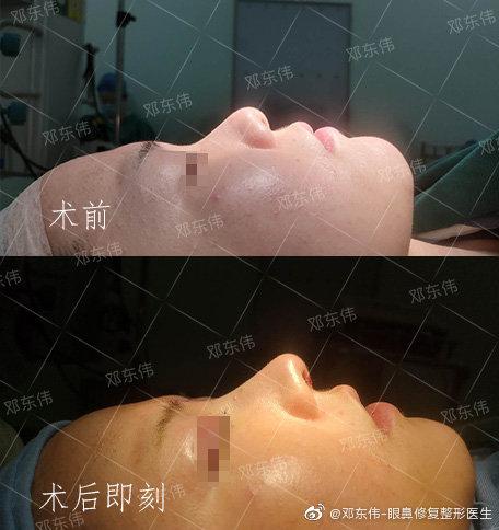 邓东伟做鼻子案例