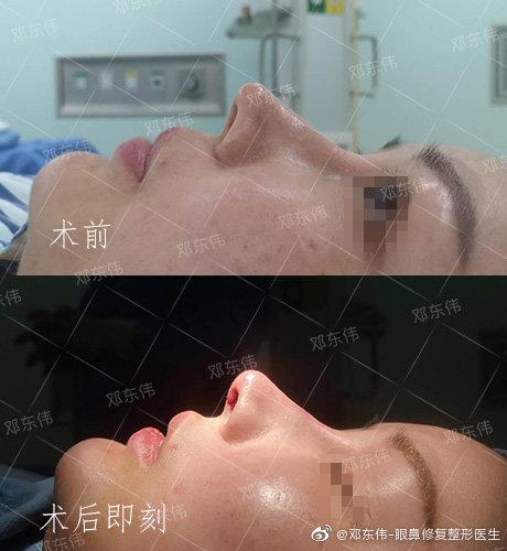 邓东伟鼻修复案例