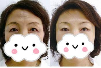 北京高难度修复切眉手术哪个医生最好?