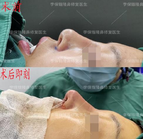 修复鼻子最好的专家是哪位医生?隆鼻修复最好的医生预约排名