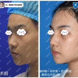 上海做鼻子哪個醫生做得好?上海隆鼻醫生預約排行榜