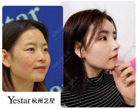 杭州最好的鼻子修復專家是誰?杭州鼻修復醫生預約排名