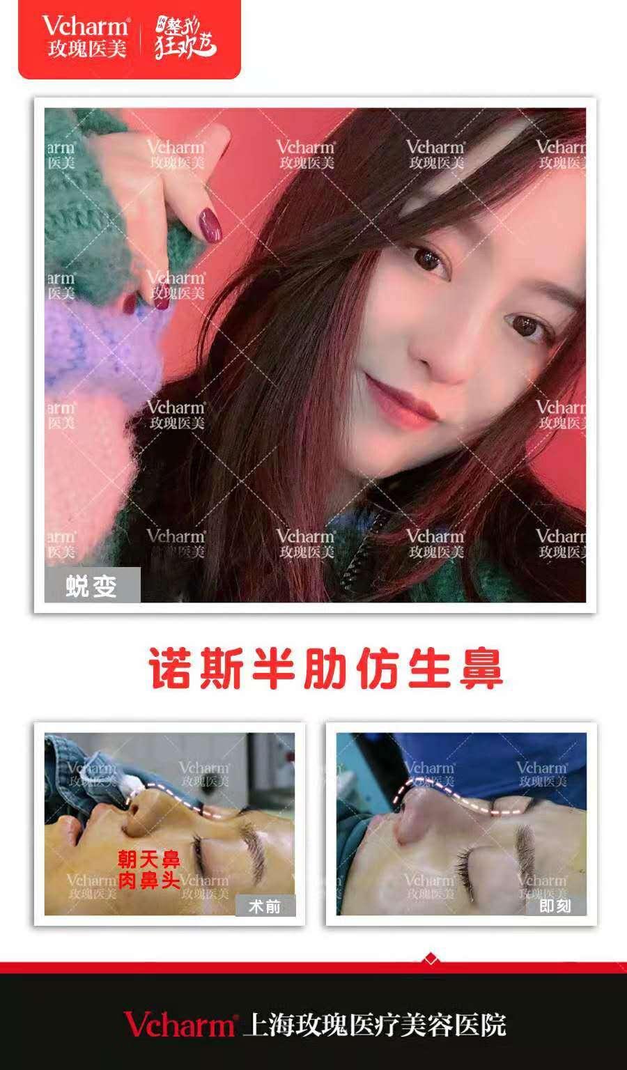 上海玫瑰医院哪个医生做的肋骨鼻好