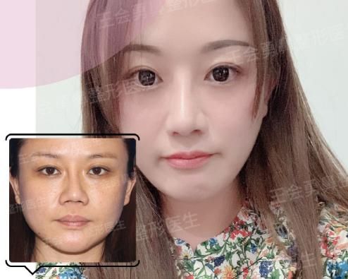 上海肋骨鼻哪个医生做的好?上海肋骨鼻专家排名大全