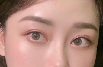 武汉割双眼皮哪个医生好?武汉双眼皮专家排名大全