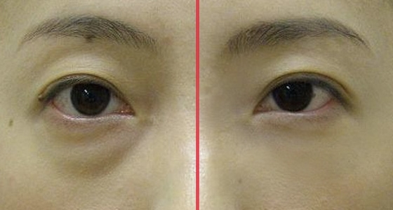 北京八大处做眼袋哪个大夫比较好?八大处去眼袋医生大全