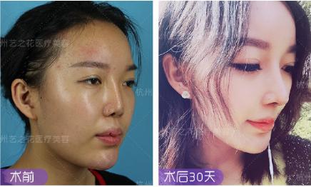 杨海波肋骨鼻案例
