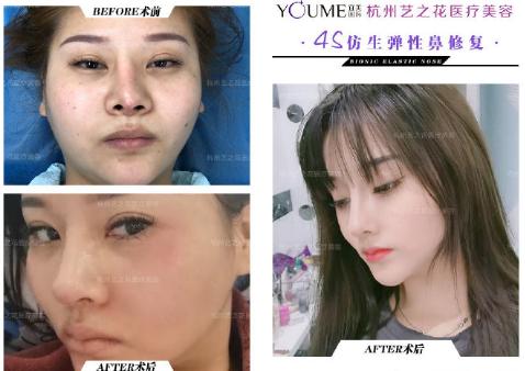杨海波鼻子整形案例