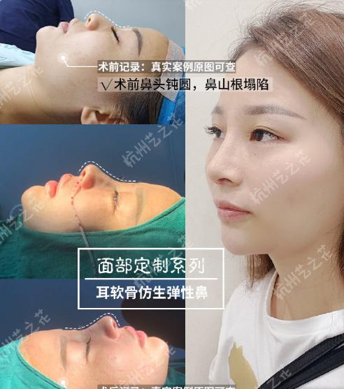杨海波鼻修复案例