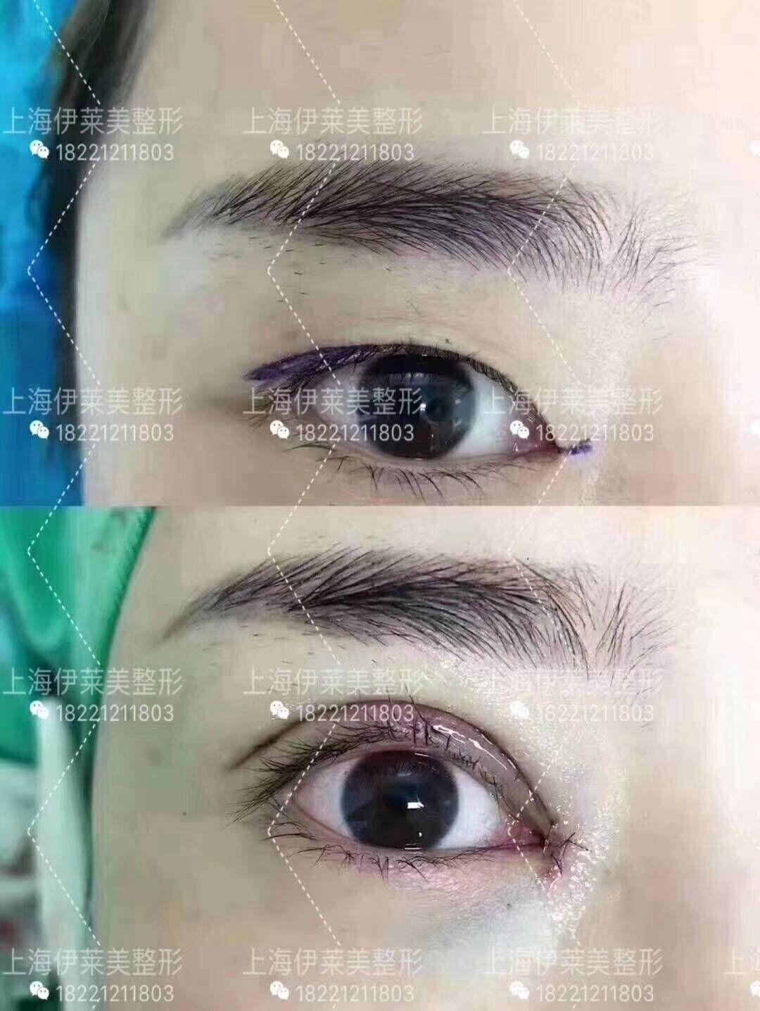 朱迪割双眼皮案例