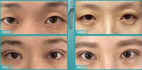 南京哪个三甲医院做双眼皮好?南京双眼皮三甲医院排名