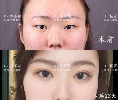 上海哪个医生做眼综合最好?上海眼综合专家排名大全