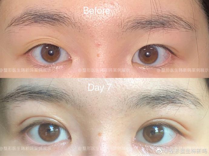 韩新鸣割双眼皮案例