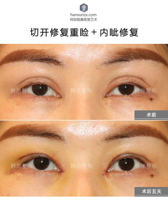 韩勋割双眼皮案例