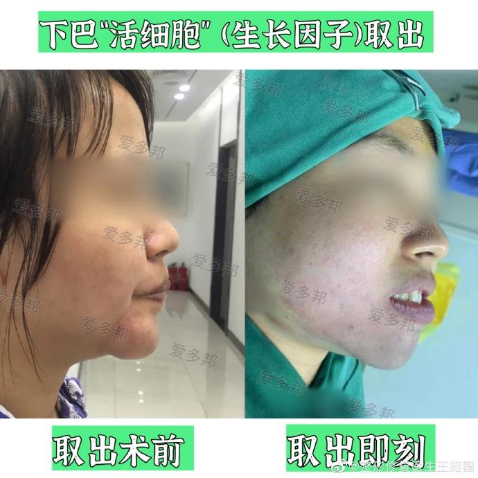 北京取生长因子最权威的医生