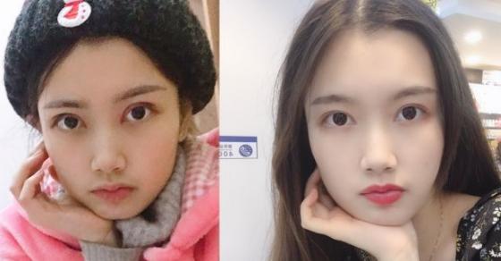 重庆做双眼皮修复技术好的医生排名有哪些?