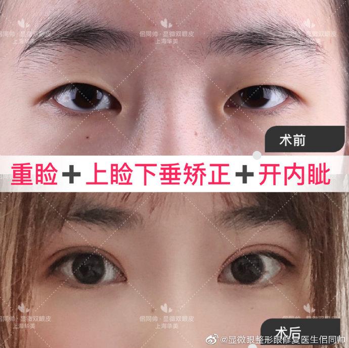 上海做双眼皮厉害的医生排名预约排行榜