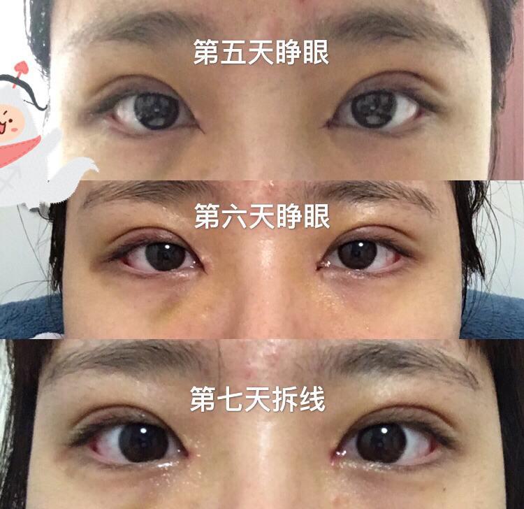 上海九院双眼皮修复最好的专家有哪些?