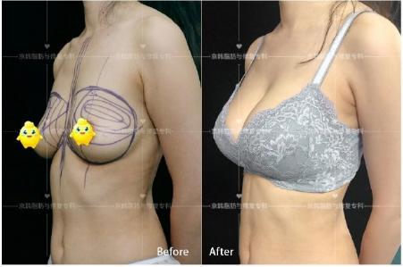 国内做丰胸最好的医生是哪个?国内隆胸专家预约排名大全