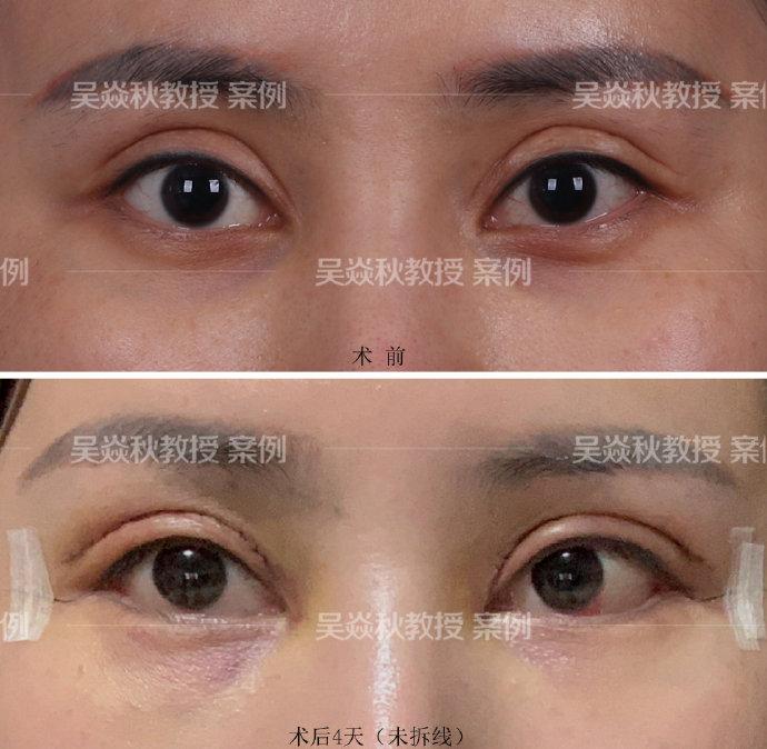 吴焱秋修复双眼皮案例