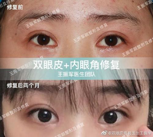 王振军修复双眼皮案例