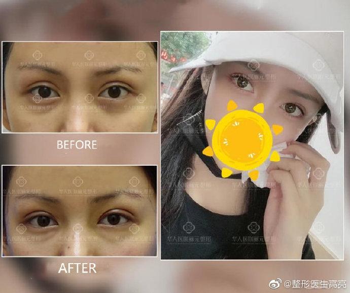 高亮修复双眼皮案例