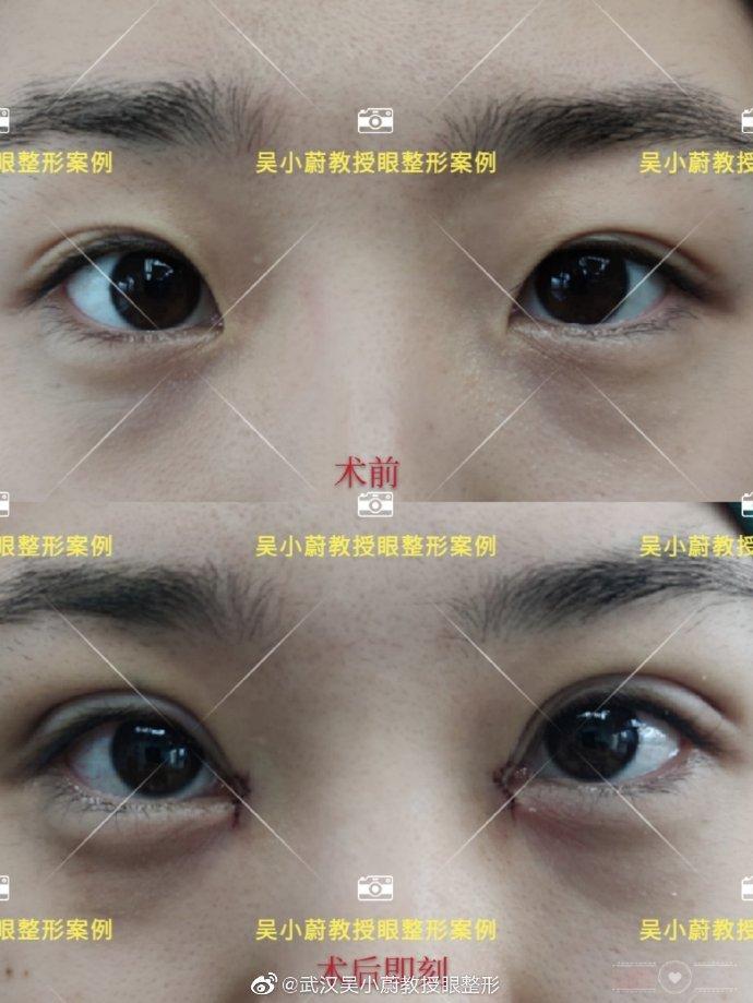 吴小蔚双眼皮修复案例
