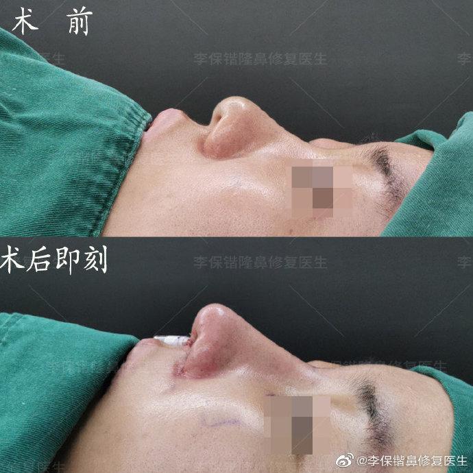 杭州隆鼻专家前十名都有谁?杭州隆鼻医生预约前十名