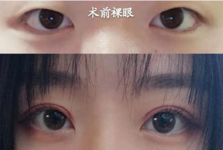 靳小雷和于晓波哪个做眼睛技术好?于晓波靳小雷谁更好?